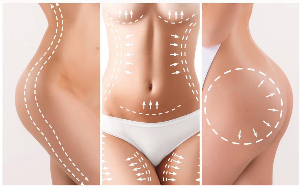 Qué sabemos de la liposucción