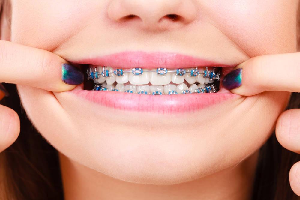 La ortodoncia en el embarazo