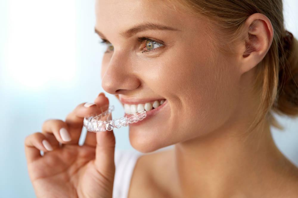 La ortodoncia, ¿todo el mundo que la lleva la necesita?