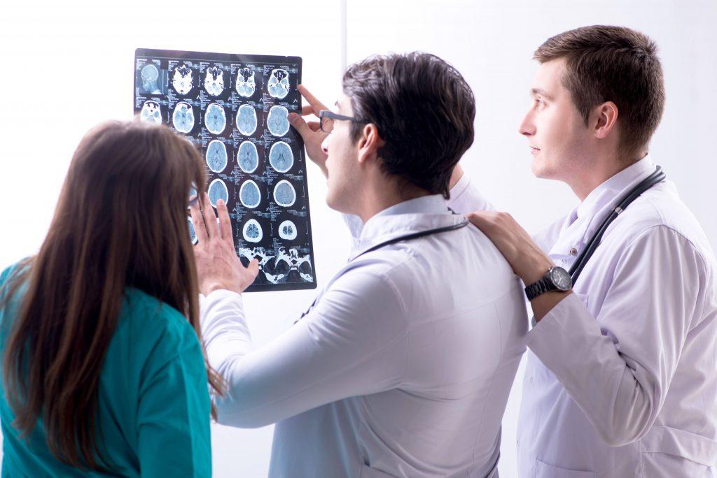 ¿Cómo nos afecta la esclerosis múltiple?